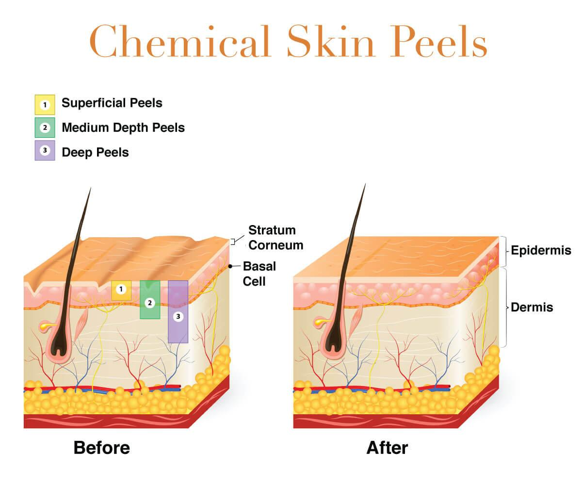 Infographic on chemical peels